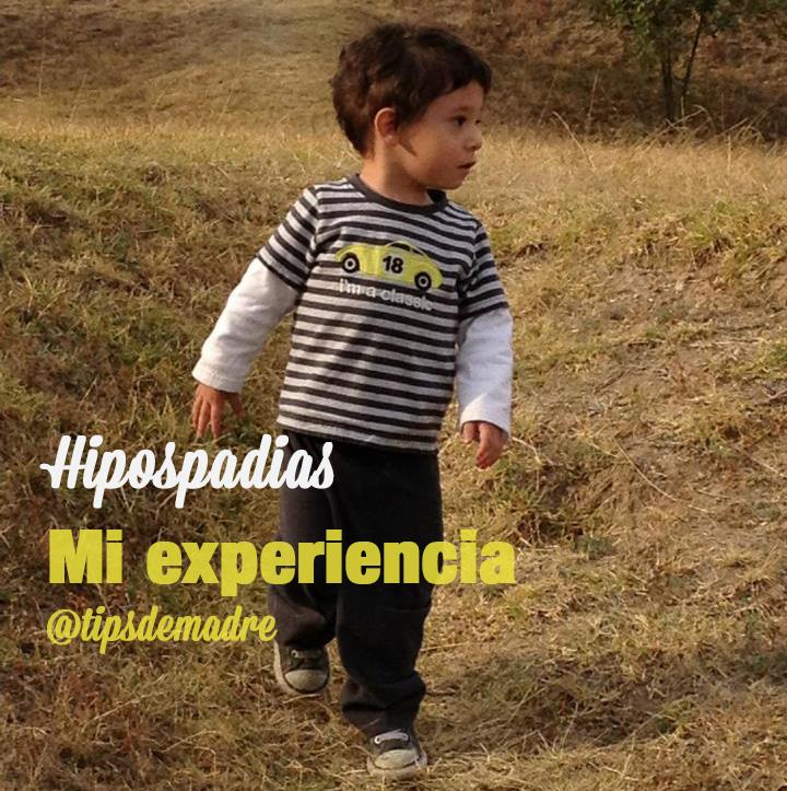 hipospadias-ninos-chiquitos