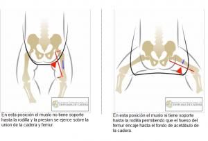 comparativa de posición de la cadera 1